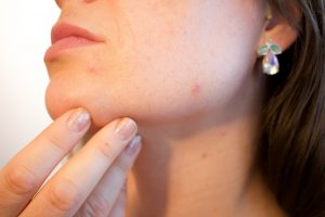 Consejos para mejorar una piel grasa