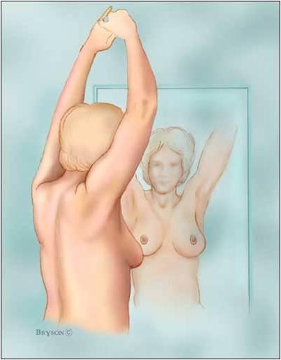 cáncer de mama 2